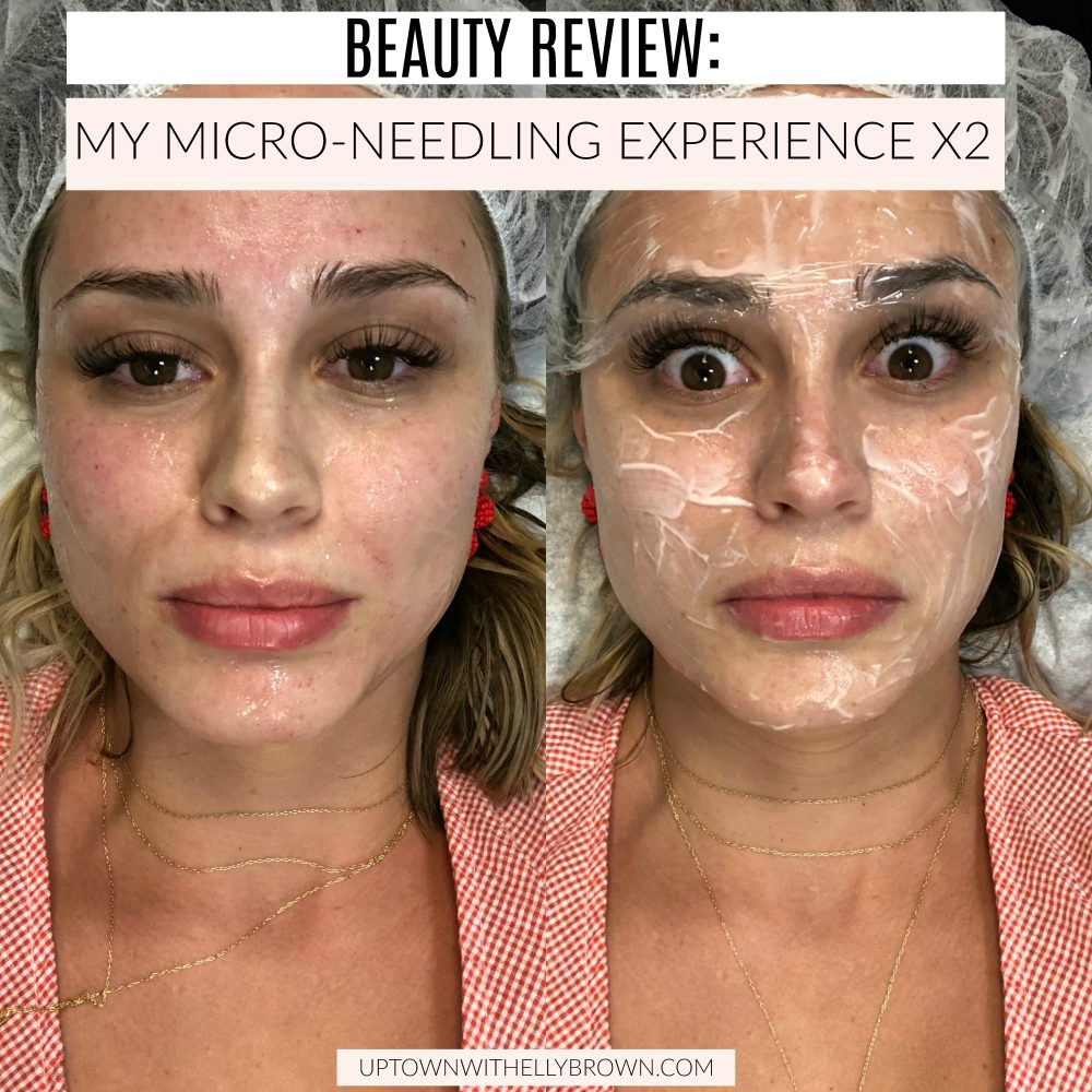 Houston Beauty blogger tries out Micro-Needling not once, but twice and shares a look at you can expect from this kind of facial.